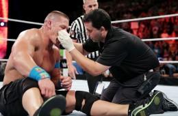A photo of John Cena with a broken nose
